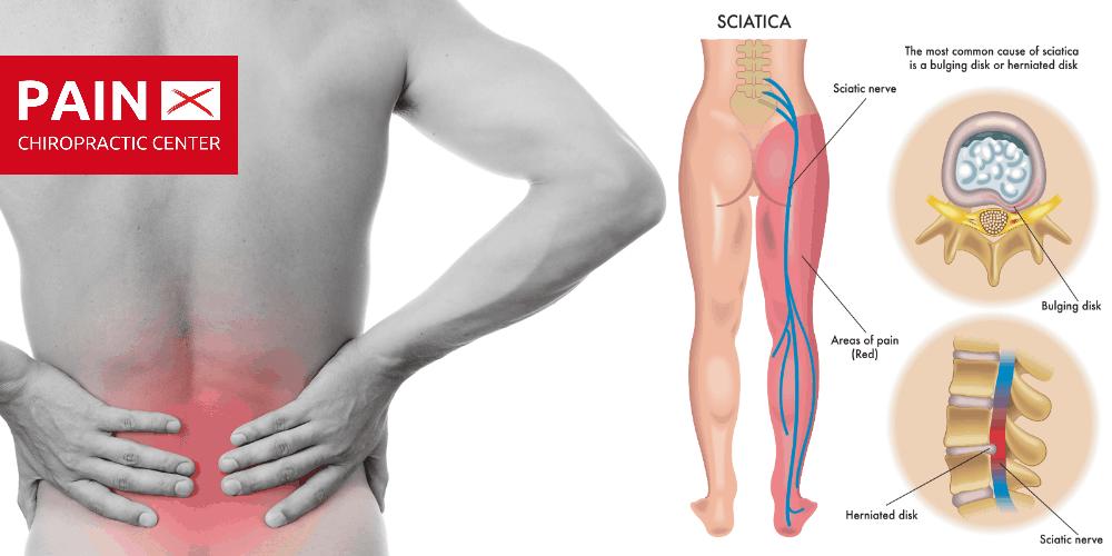 Sciatica Treatment Singapore Avoiding Sciatica Surgery